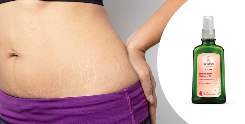 olja mot bristningar gravid